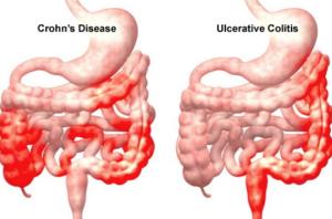 Ulcerative Colitis and Crohns