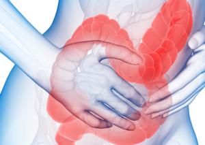 irritable bowel syndrome ibs