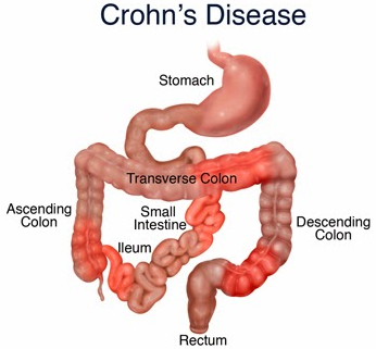Crohn's Disease Treatment and Therapy