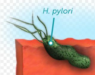 h pylori crohn's disease