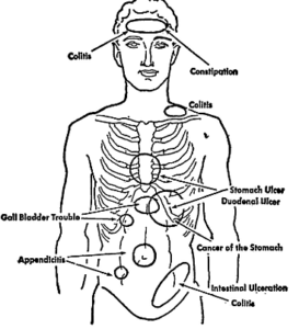 colitis symptoms of areas of pain and tenderness