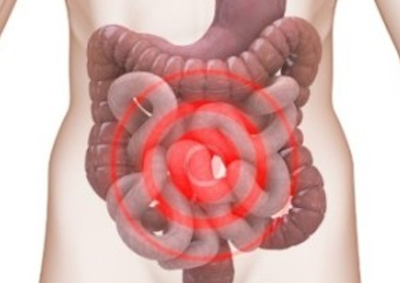 ulcerative colitis spasms of the intestine and colon
