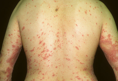 what is psoriasis man back