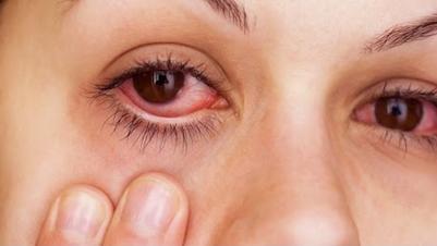 Eye Allergies Allergy of the Eyes