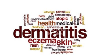 Dermatitis types of skin allergy