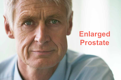 Enlarged Prostate Cancer And Colitis