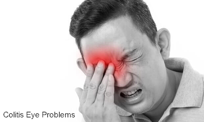 Colitis Eye Problems