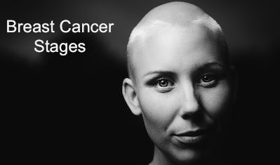 breast cancer stages woman shaved head
