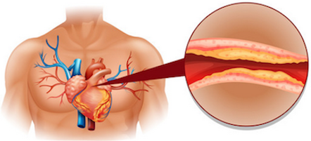 cholesterol heart disease diagram
