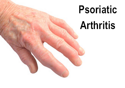 psoriatic arthritis male hand