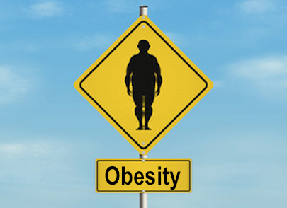 Obesity: Cause Treatment Prevention