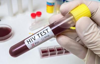 HIV Tests