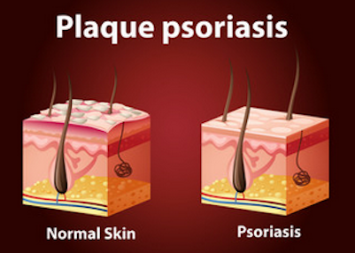 Plaque Psoriasis Inflammation Causes