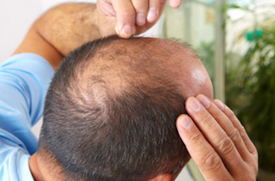 Scientific Techniques to Prevent Baldness