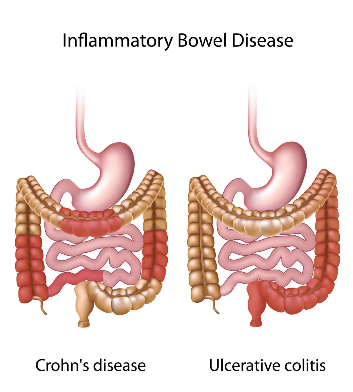 When Can Crohn's Disease Require Colon and Rectal Surgery